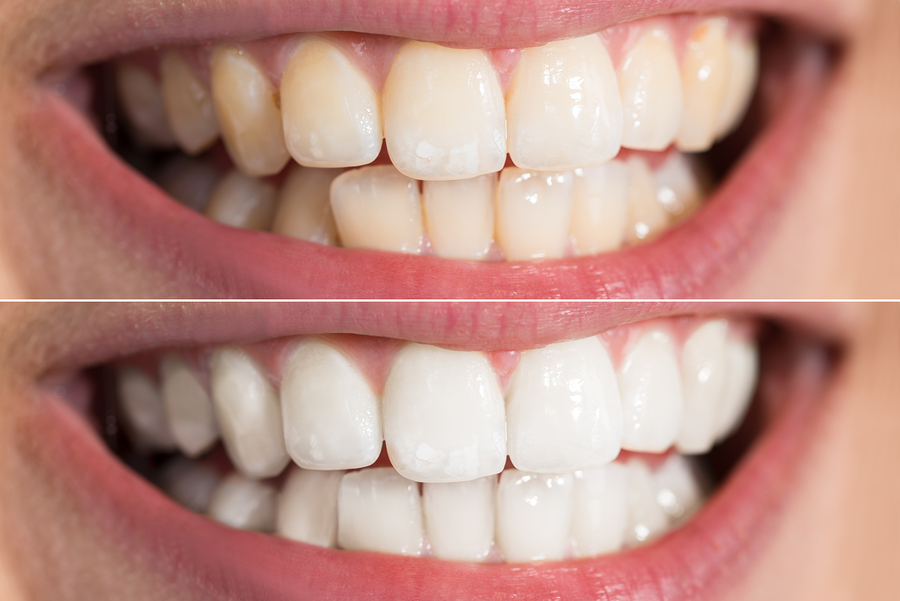 Why seeing a dentist in Windsor NSW could be the difference