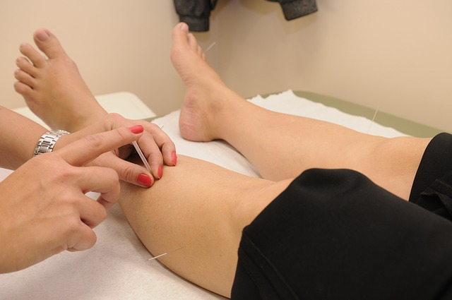 woman getting an acupuncture in Toowoomba